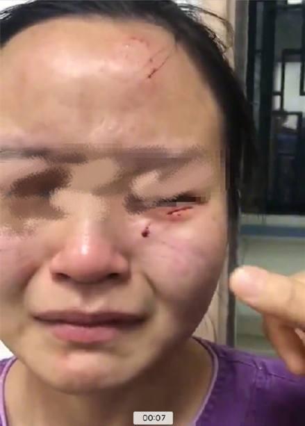 广州公开回应:被咬伤的护士检测未见异常