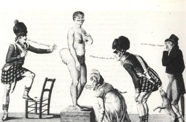 """""""巨臀女孩""""生前被当成怪物展览,死后竟被剖尸研究!"""
