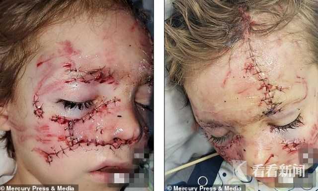 6岁男童遭比特犬狂撕咬 鼻骨断裂惨毁容 原因是?