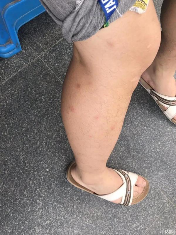 小伙湖边走了一圈,双腿竟变成这样!最近多人中招