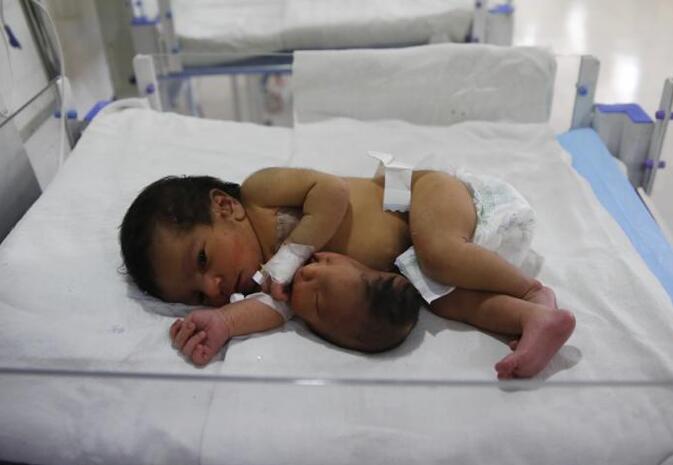 孕妇生出怪胎:可爱宝宝肚子上竟有另外一个脑袋!
