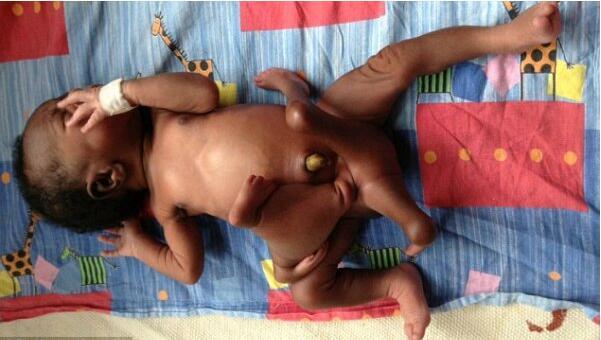 既惊悚又可怜!孕妇诞下四手四脚男婴,医生称无计可施