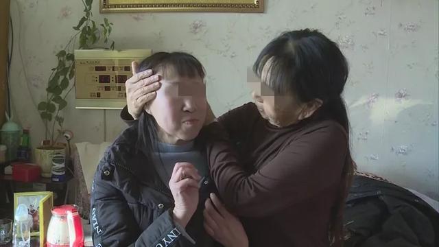 """""""换脸""""手术22天后,辽宁""""最年轻老人""""重获15岁少女容貌"""